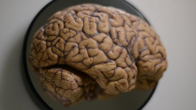 Brains are beautiful featured image