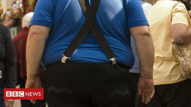 How should we treat obesity? It's really not black and white. featured image
