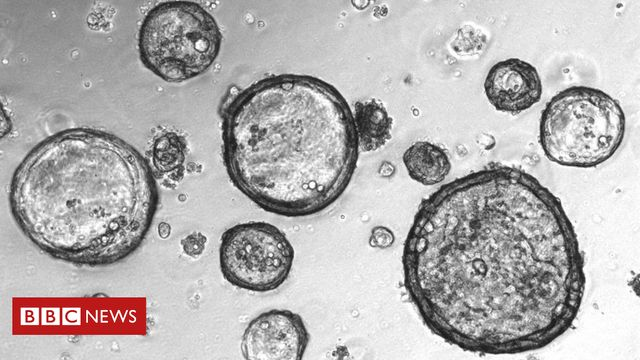 Mini-tumours' created to battle cancer featured image