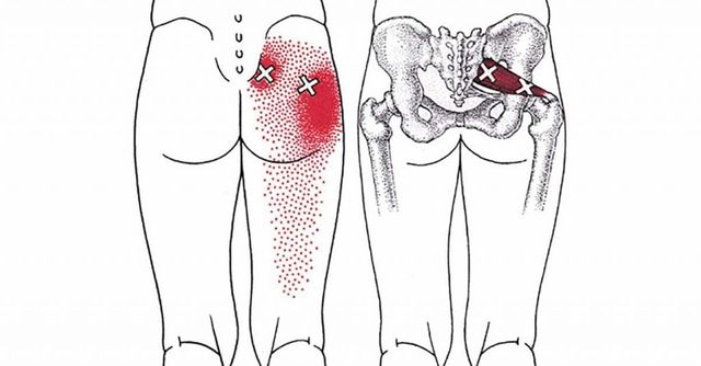 Getting rid of Piriformis pain featured image