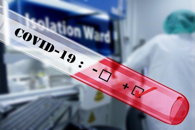 U-Turn on Tax Treatment of COVID-19 Tests featured image