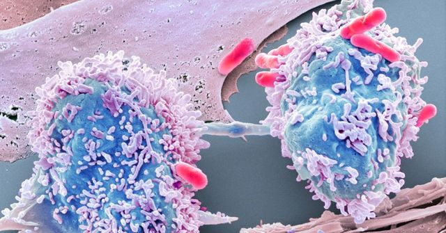 Using data science to beat cancer featured image