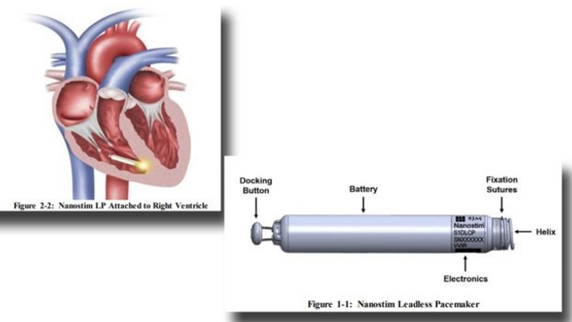 Call for greater regulation of Medical Devices featured image