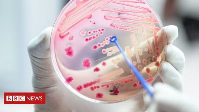 Concern over the number of sepsis deaths featured image