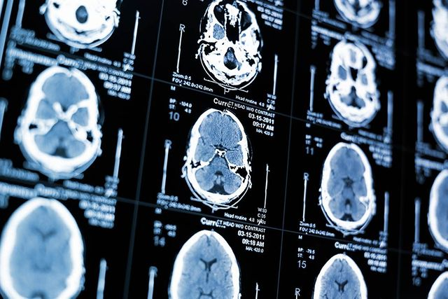 Why high powered CEOs are more prone to brain damage featured image