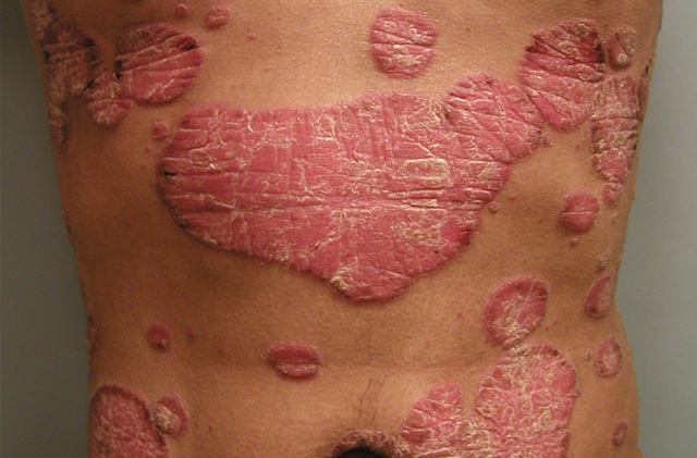 Racial Minorities Less Likely to See a Doctor for Psoriasis featured image