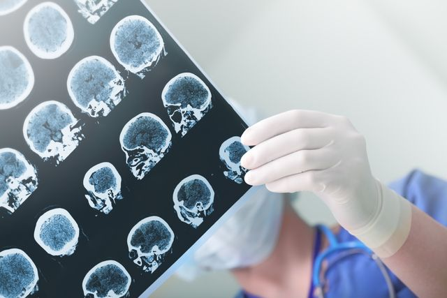 Are digital diagnostics the way forward in the battered field of Alzheimer's? featured image