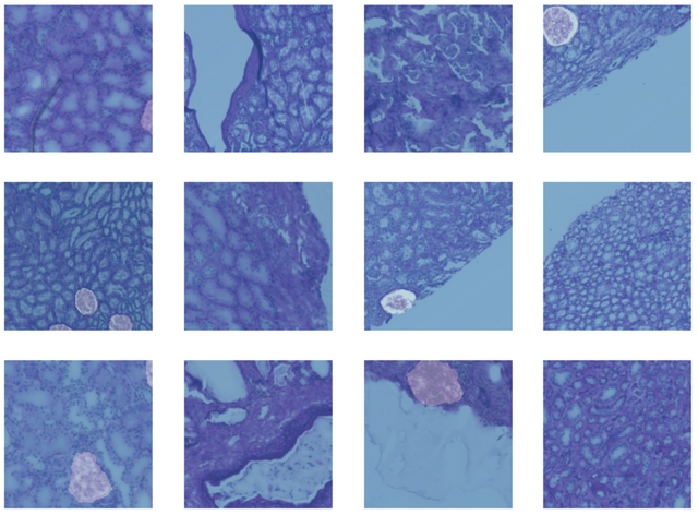 Medical Imaging on Kaggle featured image