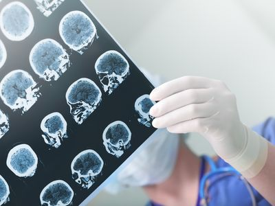 Are digital diagnostics the way forward in the battered field of Alzheimer's?