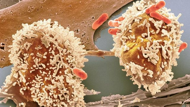 New test for bowel cancer featured image