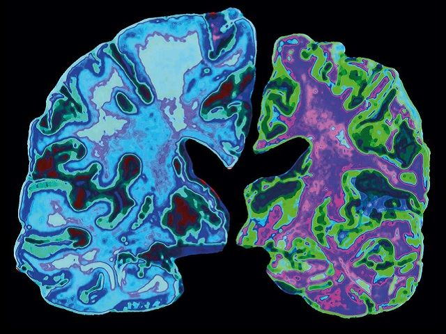 JNCASR Scientists develop potential drug candidate for Alzheimer's treatment featured image
