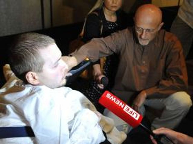 First human head transplant featured image